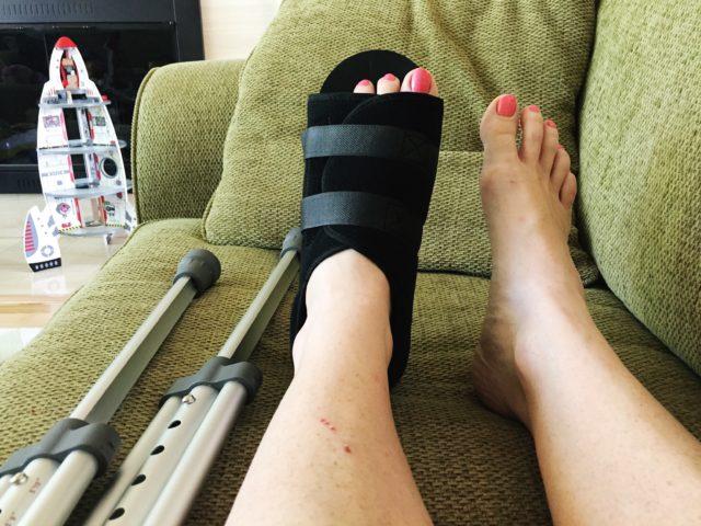 foot-sprain